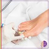 serviço de podóloga para diabéticos Vila Mariana
